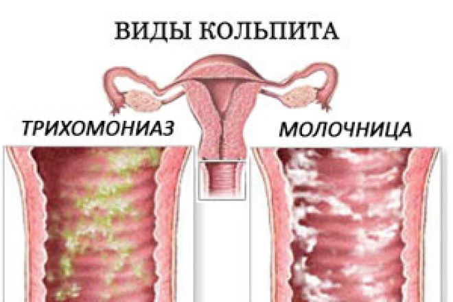 Кольпит у мужчин чем лечить Интересное в мире сегодня Mebel-zavod.ru