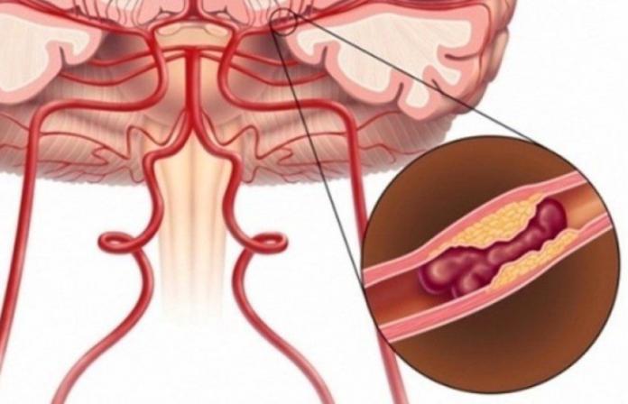 Как распознать микроинсульт и не упустить время для успешной терапии?