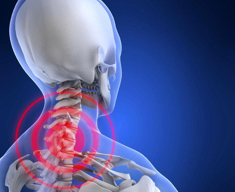 Как уберечься от шейного остеохондроза и как он влияет на наше состояние