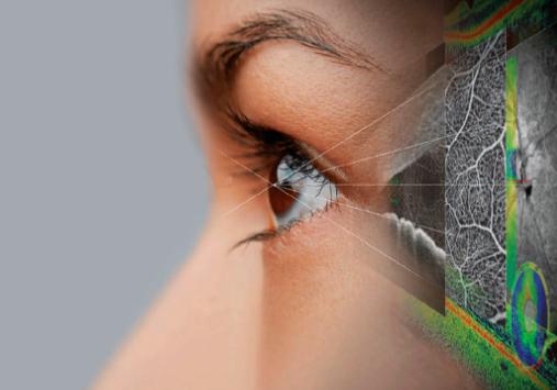 5 Мифов о катаракте