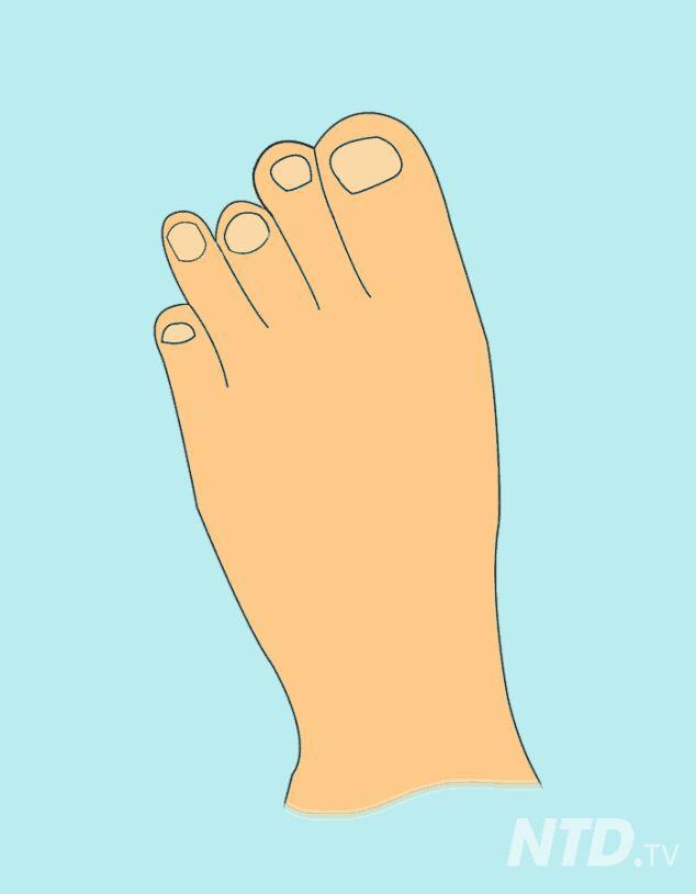Что пальцы на ногах могут рассказать о вашем будущем