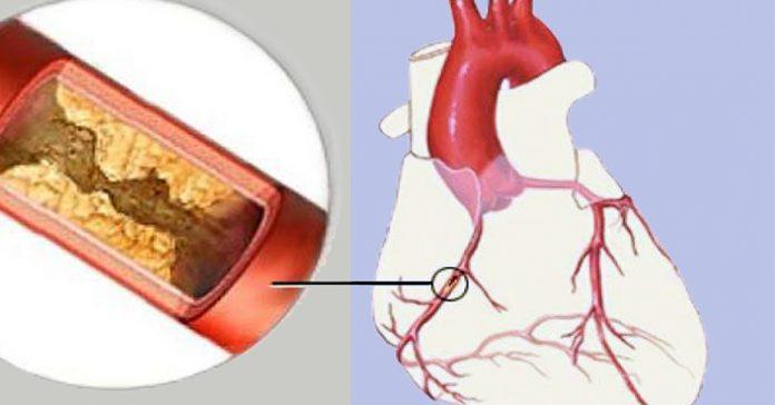 10 видов пищи, которые очистят артерии