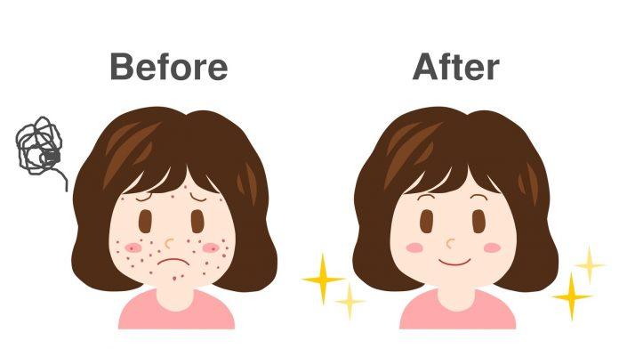 5 продуктов, которых стоит избегать из-за токсичности для вашей кожи