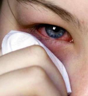 Очанка для глаз - растение, известное своими целебными свойствами для лечения многих глазных заболеваний. Как действует очанка и как ее принимать.