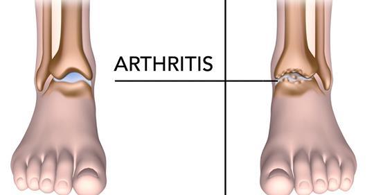 5 видов пищи, которые помогают бороться с болью при артрите