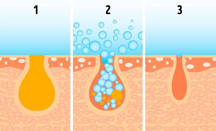 Откуда берутся расширенные поры и как добиться гладкой кожи без дорогих салонных процедур