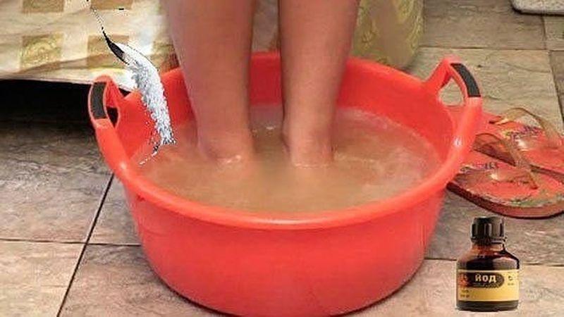 Замучил грибок и потеют ноги: попробуйте простой рецепт раствора на основе соли и йода