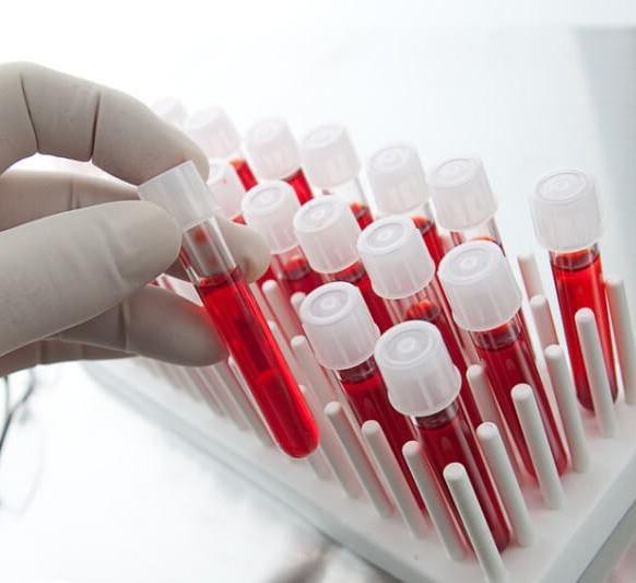 Картинки по запроÑу Показатели крови, которые раÑÑкажут вÑе о вашем здоровье