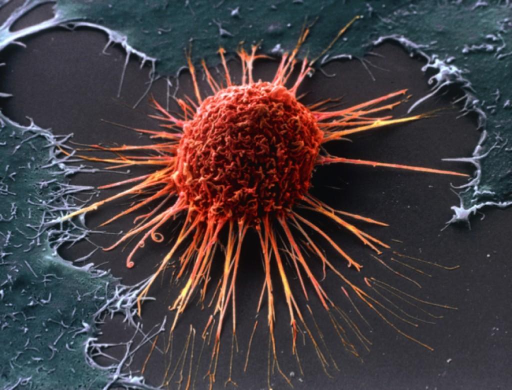 8 самых верных способов защититься от рака