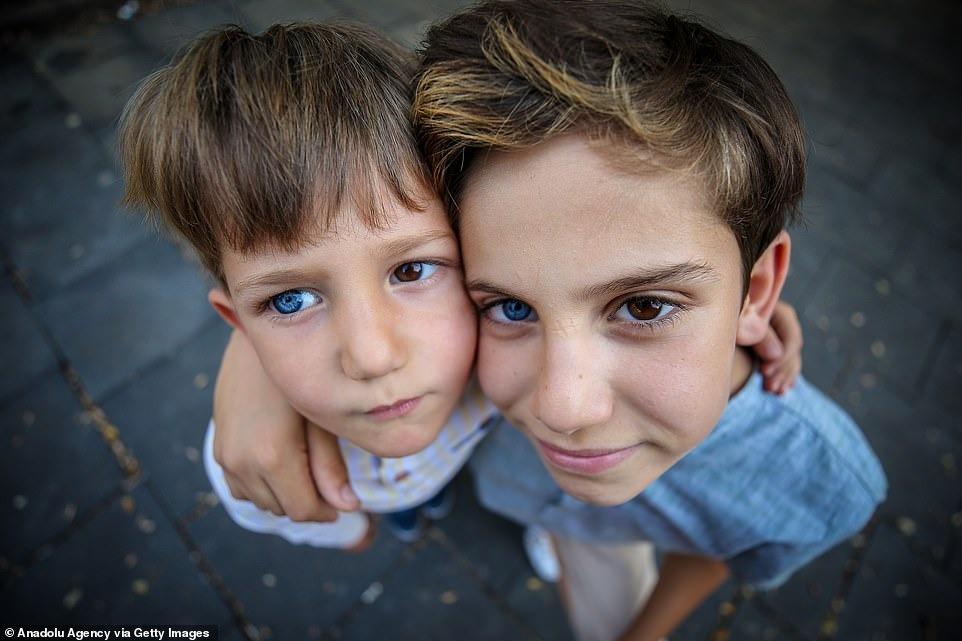 Братья из Турции с красивыми глазами разного цвета