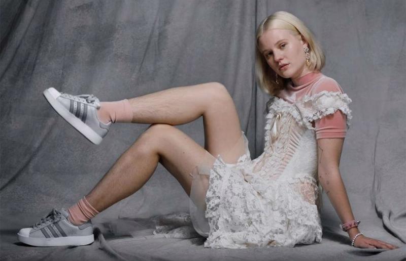 Поклонники adidas оказались не готовы к мохнатым ногам в инстаграме бренда