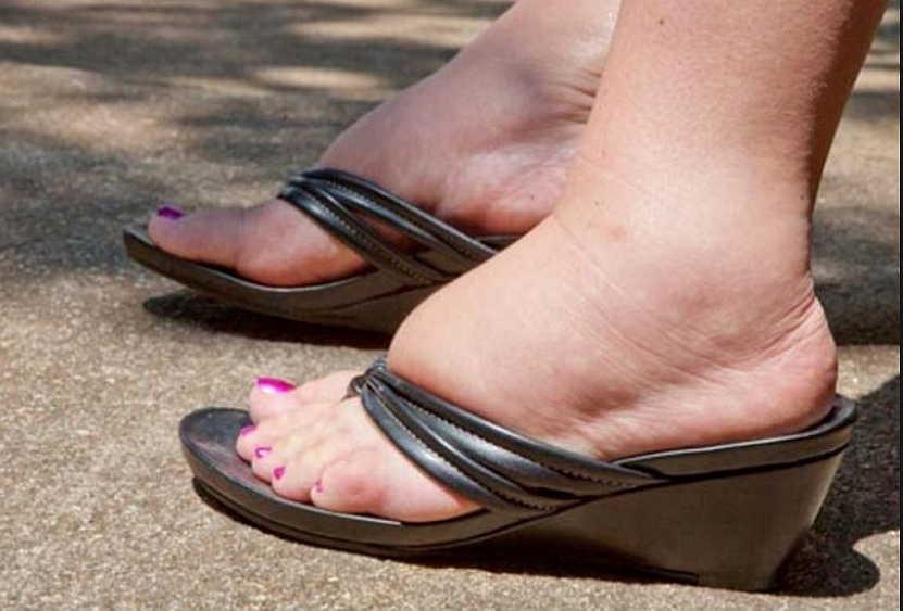 Терапевт о летних отеках: почему ноги больше страдают в жару и что с этим делать