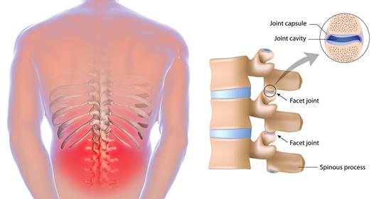5 растяжек, которые могут помочь предотвратить и облегчить боль в нижней части спины