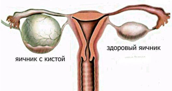 Киста на яичнике лечение в домашних условиях 983