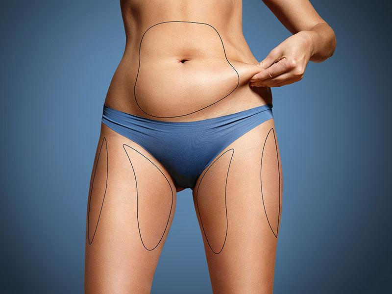 Как связаны женская энергия, лишний вес, депрессия и лень