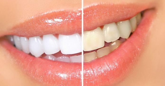 Как отбеливать желтые зубы за 2 минуты естественным способом