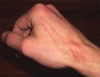 аллергия на укус кошки