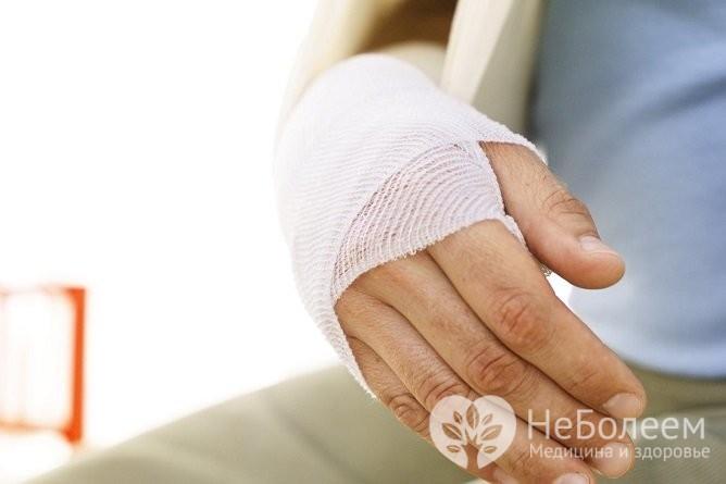 Вторичный остеоартроз может возникать из-за предшествующих травм запястья