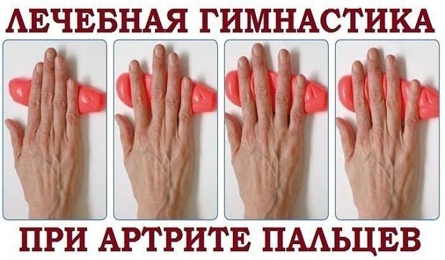 При артрите пальцев рук поможет специальная гимнастика