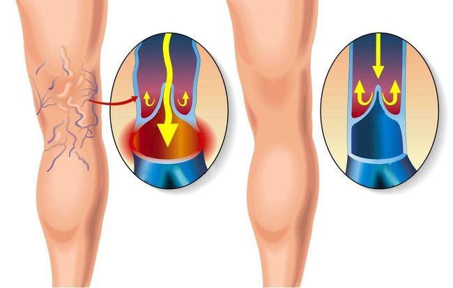 Народные методы лечения тромбофлебита