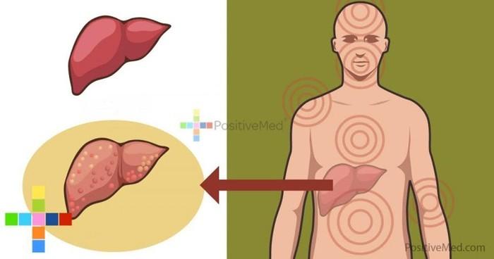 Как ваше тело пытается сообщить вам о поврежденной печени