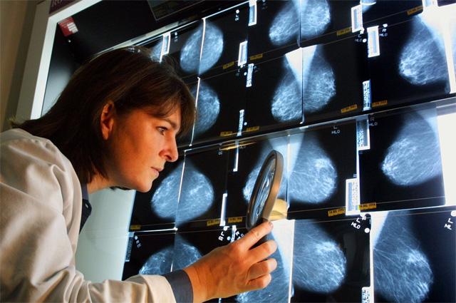 Всё, что нужно знать о раковых заболеваниях