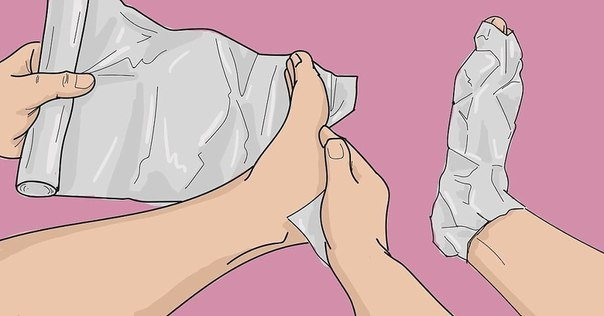 Лечение фольгой