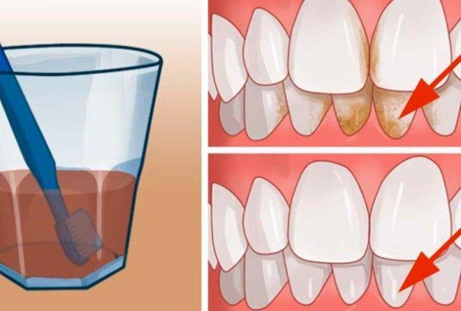 Способ избавиться от зубного камня дома