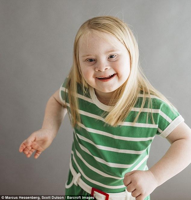 Семилетняя девочка с синдром…