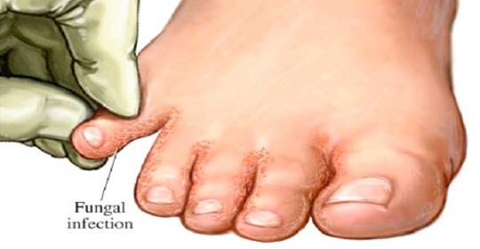 Попрощайтесь с грибковыми инфекциями: замочите ноги в…
