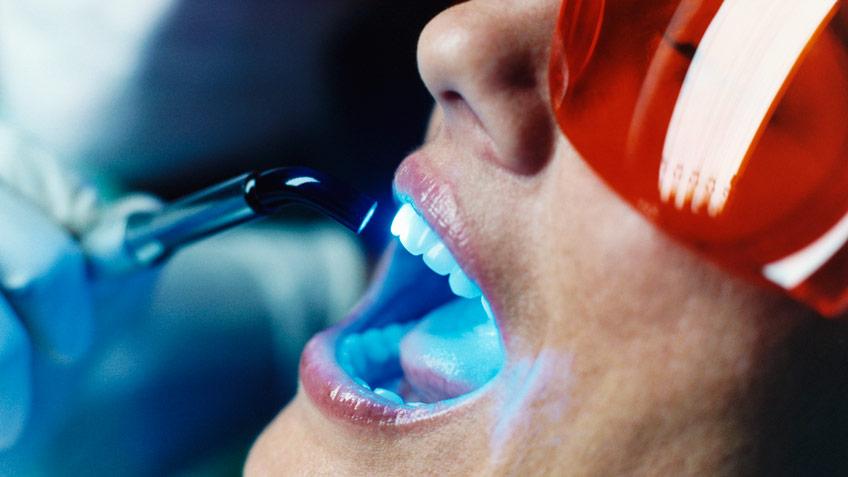 Отбелить зубы и улучшить зрение. Риски популярных процедур и как их избежать