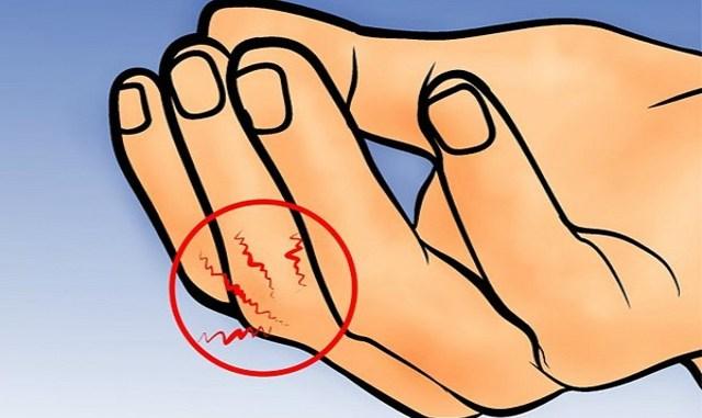 Особая точка на пальце – СОХРАНИ себе!Просто спасение в экстремальной ситуации!