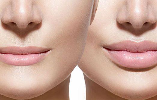 Как делают увеличение губ?