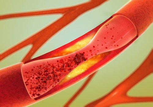 Имбирная вода очистит артерии
