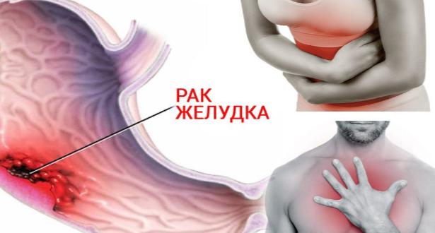 Симптомы, которые могут быть ранними признаками рака желудка