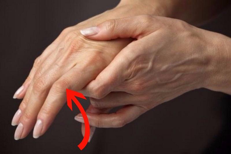 определить болезни по рукам
