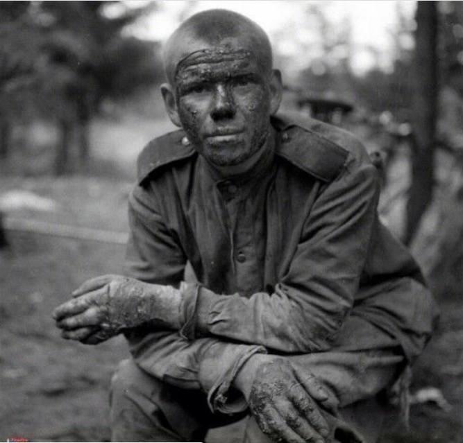 Советский солдат, горевший в танке
