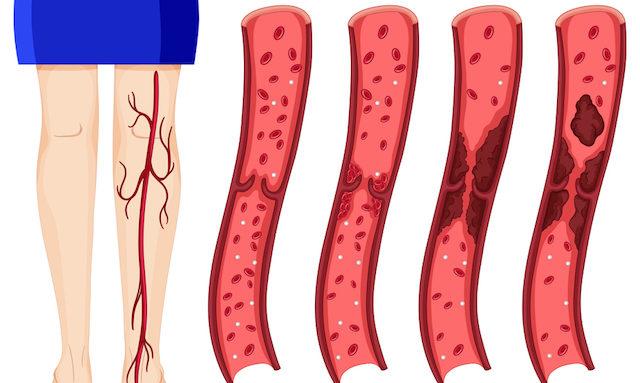 10 ранних симптомов сгустка крови, которые вы никогда не должны игнорировать
