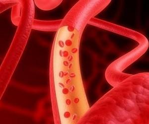 11 несложных способов для улучшения циркуляции крови