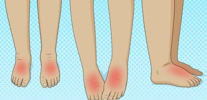 Опухшие ноги: 8 тревожных болезней, о которых они предупреждают Главное - вовремя обнаружить симптомы.