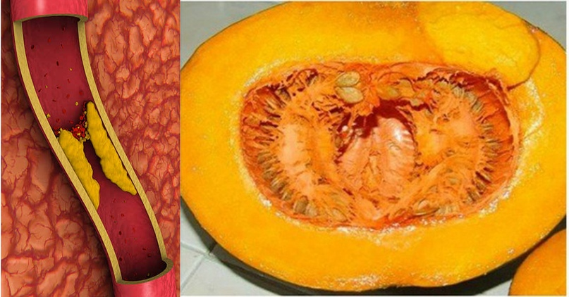 Натуральный способ избавиться от холестерина и повышенной глюкозы в крови