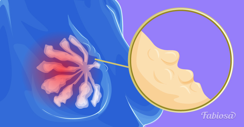 Женщина обнаружила необычный симптом рака груди и решила рассказать о нем всему миру