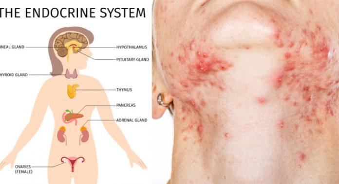 5 продуктов, которые разрушают ваши гормоны и кожу