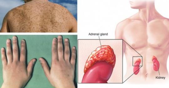Предостерегающие симптомы надпочечниковой недостаточности и природные методы лечения