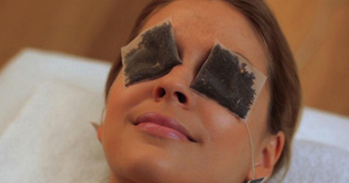 Вот как избавиться от темных кругов и мешков под глазами: 7 натуральных способа