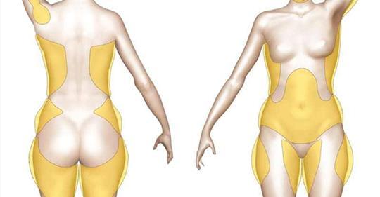 Трюки и советы, которые помогут похудеть без упражнений
