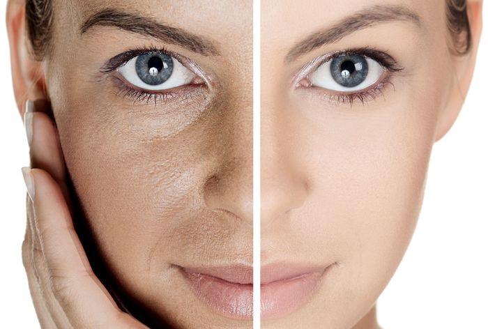Усталая кожа причины процедуры