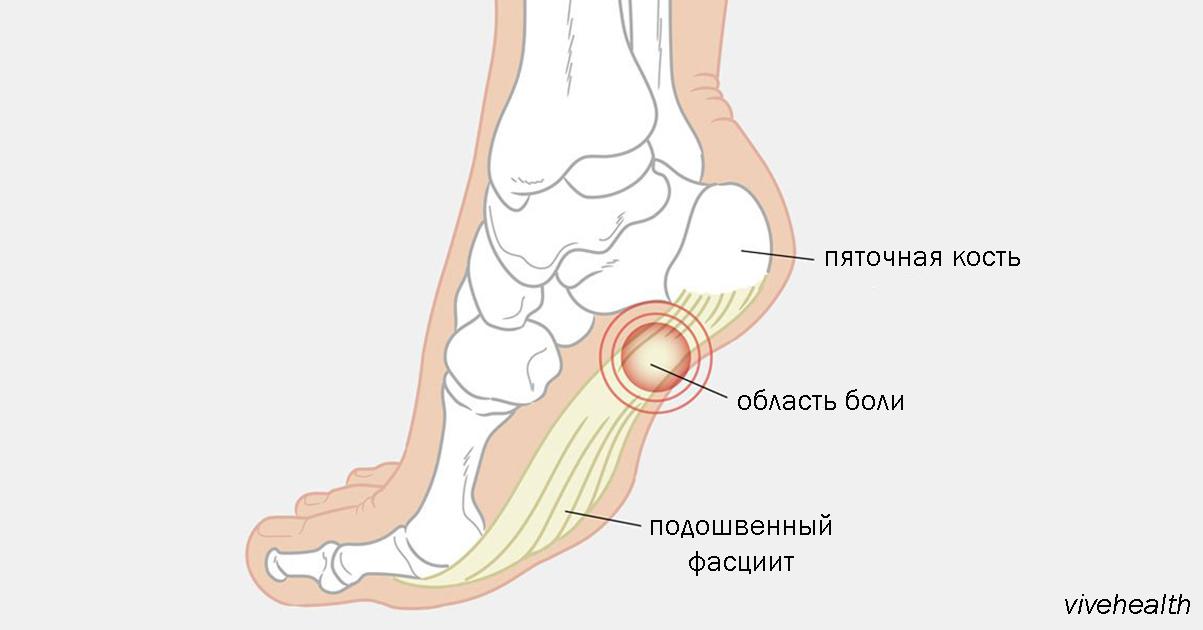 6 опасных патологий при боли в стопе