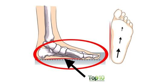 5 причин, по которым ваши ноги все время болят и как это исправить