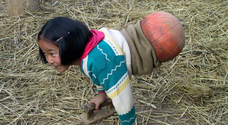 Национальная героиня Китая: девочка с баскетбольным мячом вместо ног стала известной спортсменкой